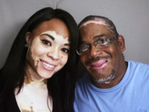 Afrique Santé : coup de projecteur sur le Vitiligo , une maladie de la peau