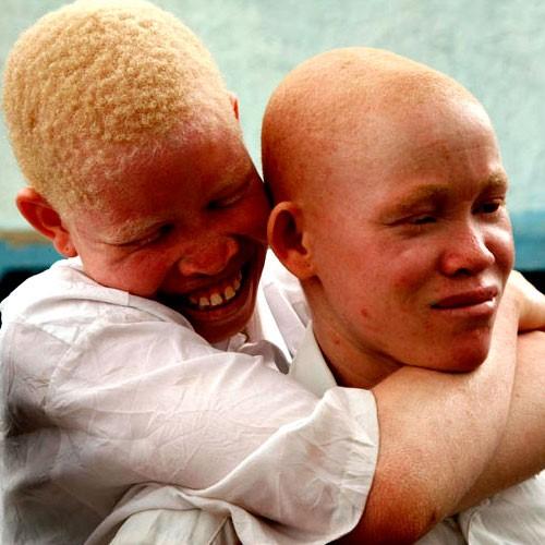 Journée  internationale de l'albinisme : Les difficultés rencontrées par les Albinos !!! L'UNESCO  est au cœur des manifestations !