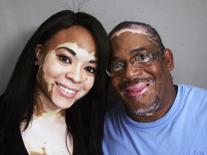 La raison des taches de pigment sur la joue