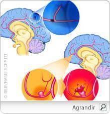 Accident Vasculaire Cérébrale (AVC) : Symptômes causes et traitement