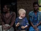 Assassinats d'albinos: le Malawi interdit les sorciers et guérisseurs traditionnels