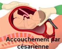 Afrique Santé : Accouchement par Césarienne , Un gros business  pour certains Médecins et autres responsables de structures privées ?