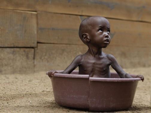 En dépit de son énorme potentiel agricole, l'Afrique subit à nouveau des situations de famine catastrophiques