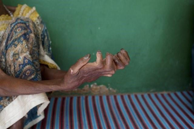 Journée mondiale des lépreux : Dans la peau d'un lépreux  ! !!