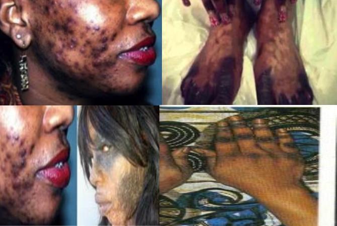 Éclaircissement de la peau  :  Attention aux conséquences !!!